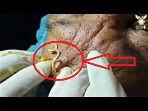 Old Age Acne On The Face - Blackheads Removal With Oddly