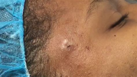 Cyst Removal New Client - blackhead popping