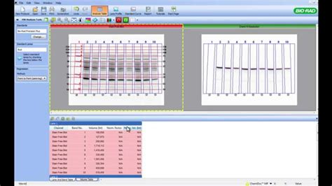 Using Image Lab™ Software for Total Protein Normalization